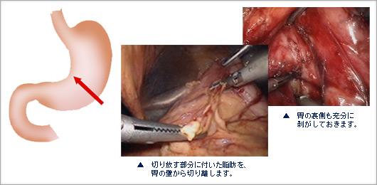 板橋中央総合病院 きずの小さな手術 腹腔鏡手術センター|当院で可能な ...